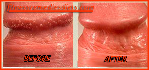 Treatment ppp disease Pearly Penile