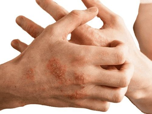 Psoriasis: symptoms, causes, types, and treatments - FITZABOUT