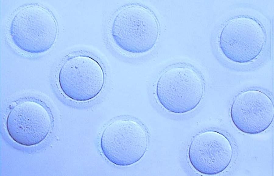 Aspect des ovocytes avant d'être vitrifiés