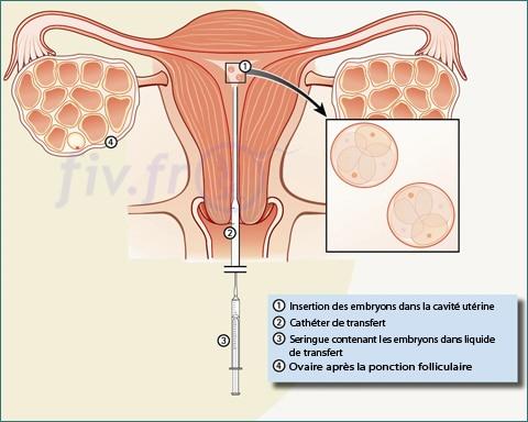 que faire après transfert embryon
