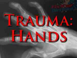 First Aid: Trauma - Hands