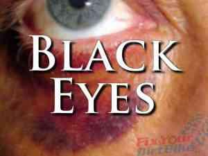 External First Aid Training - Black Eyes
