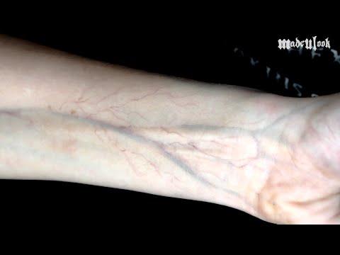 weird skin 2