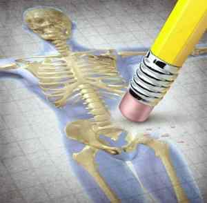 csontritkulas-cikk-blog