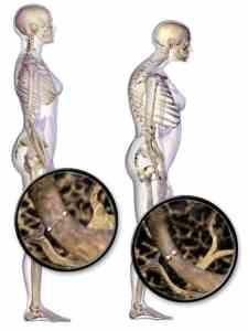 csontritkulas-osteoporosis-testtartas-cikk