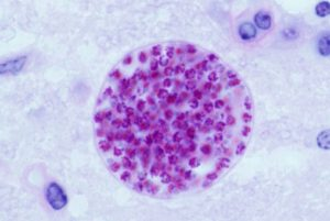 Toxoplasma gondii cyst in mouse brain. Author: Jitinder P. Dubey