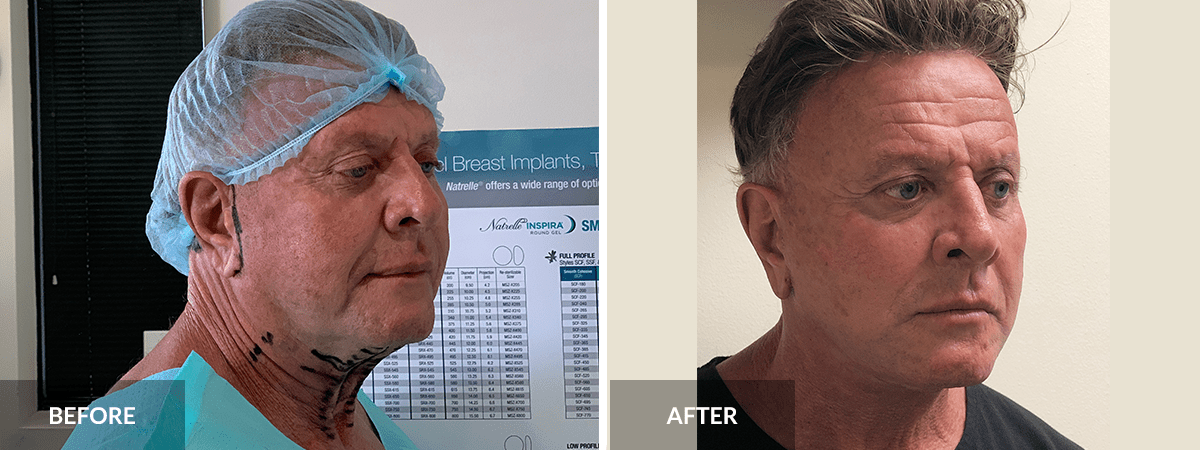 before-after-facelift-dr-pinnella-oblique