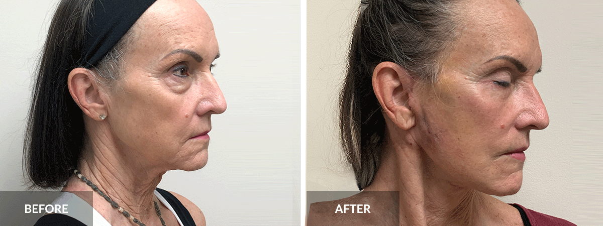 before-after-facelift-dr-pinnella-side-view