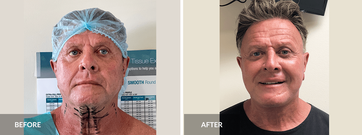 before-after-facelift-pinnella
