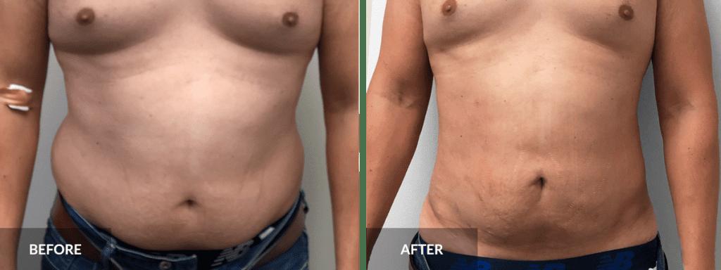 before-after-liposuction-dr-alexander