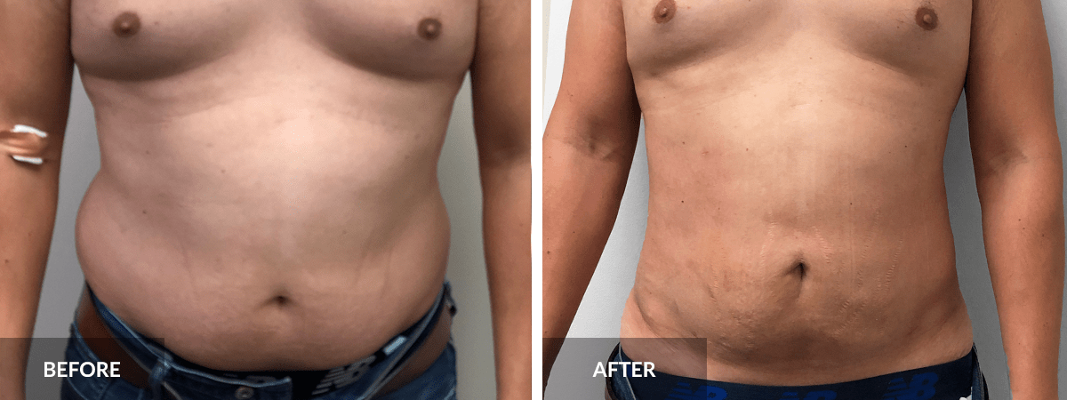 before-after-liposuction-dr-alexander