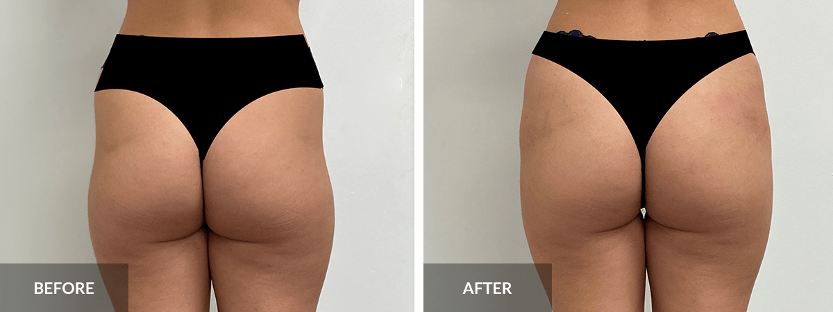 before-after-sculptra-non-surgical-bbl