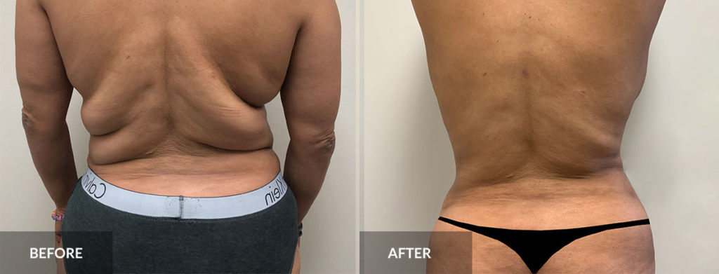 Liposuction 360 before and after