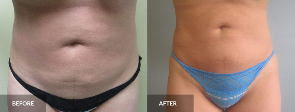 stomach liposuction before and after