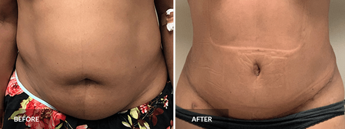 Tummy Tuck before and after - blog post