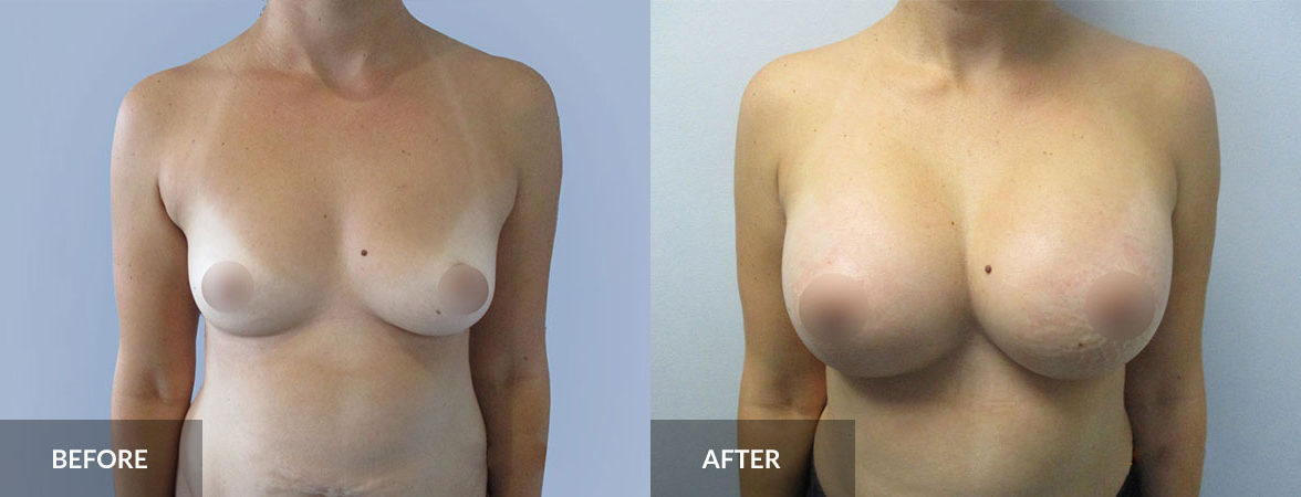 Areast Augmentation Before and After