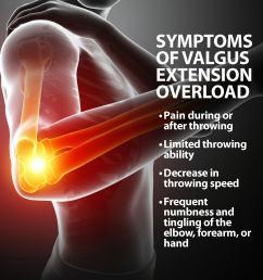 valgus extension overload symptoms [ 1636 x 1636 Pixel ]