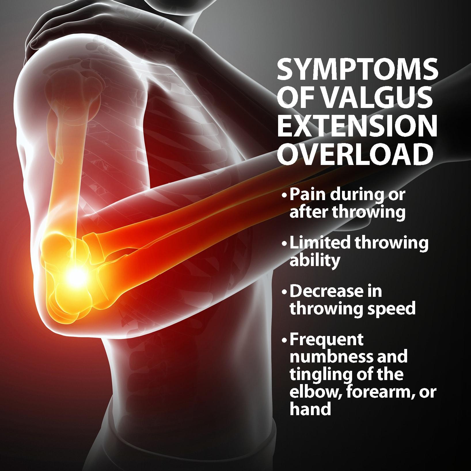 hight resolution of valgus extension overload symptoms