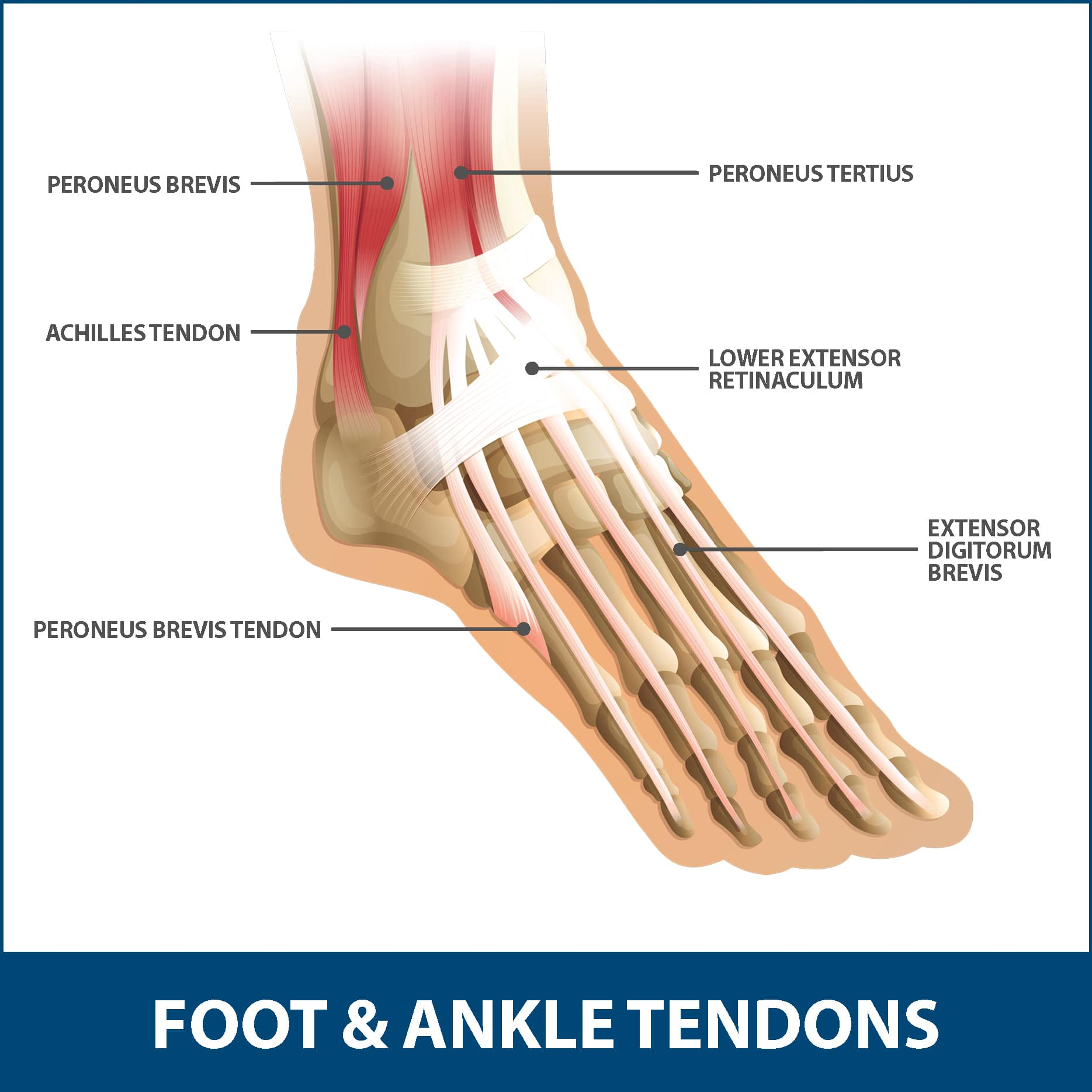 hight resolution of achilles tendinitis tendons