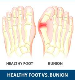 children are also at risk of developing a bunion but adults are most commonly affected bunions that occurs in young people are called adolescent bunions  [ 1869 x 1869 Pixel ]