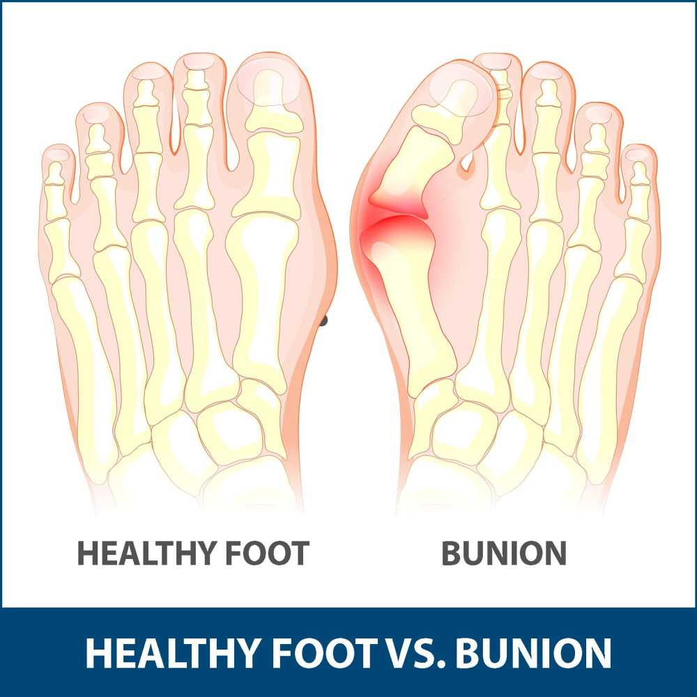 medium resolution of children are also at risk of developing a bunion but adults are most commonly affected bunions that occurs in young people are called adolescent bunions