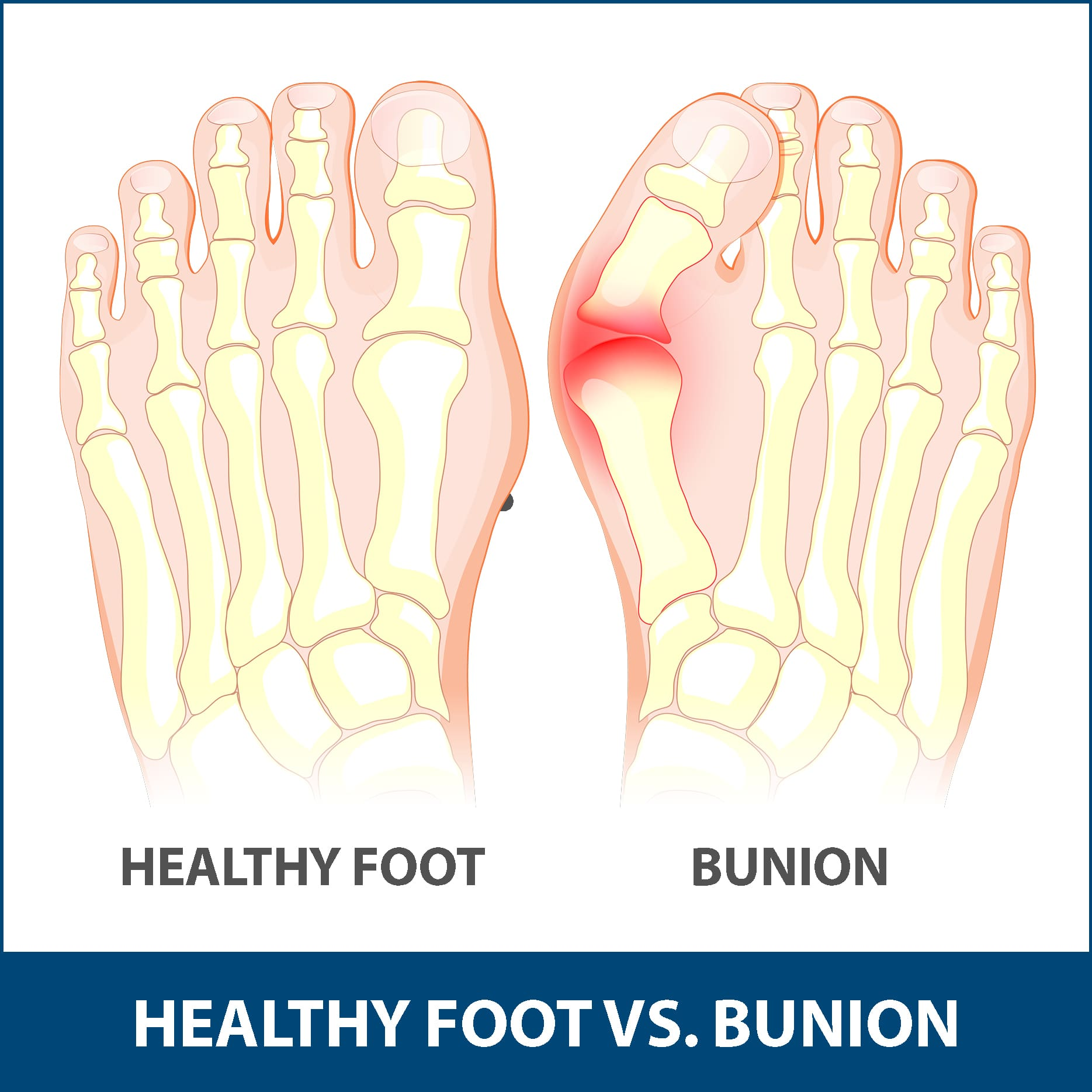 hight resolution of children are also at risk of developing a bunion but adults are most commonly affected bunions that occurs in young people are called adolescent bunions