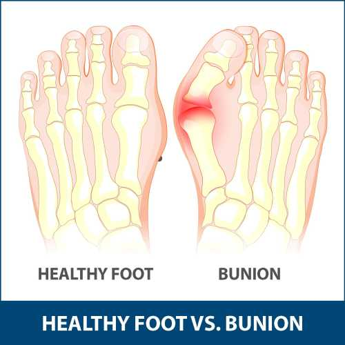 small resolution of children are also at risk of developing a bunion but adults are most commonly affected bunions that occurs in young people are called adolescent bunions