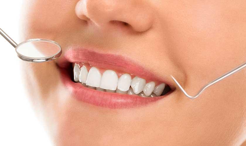 3 Major Benefits Of Choosing Professional Teeth Whitening