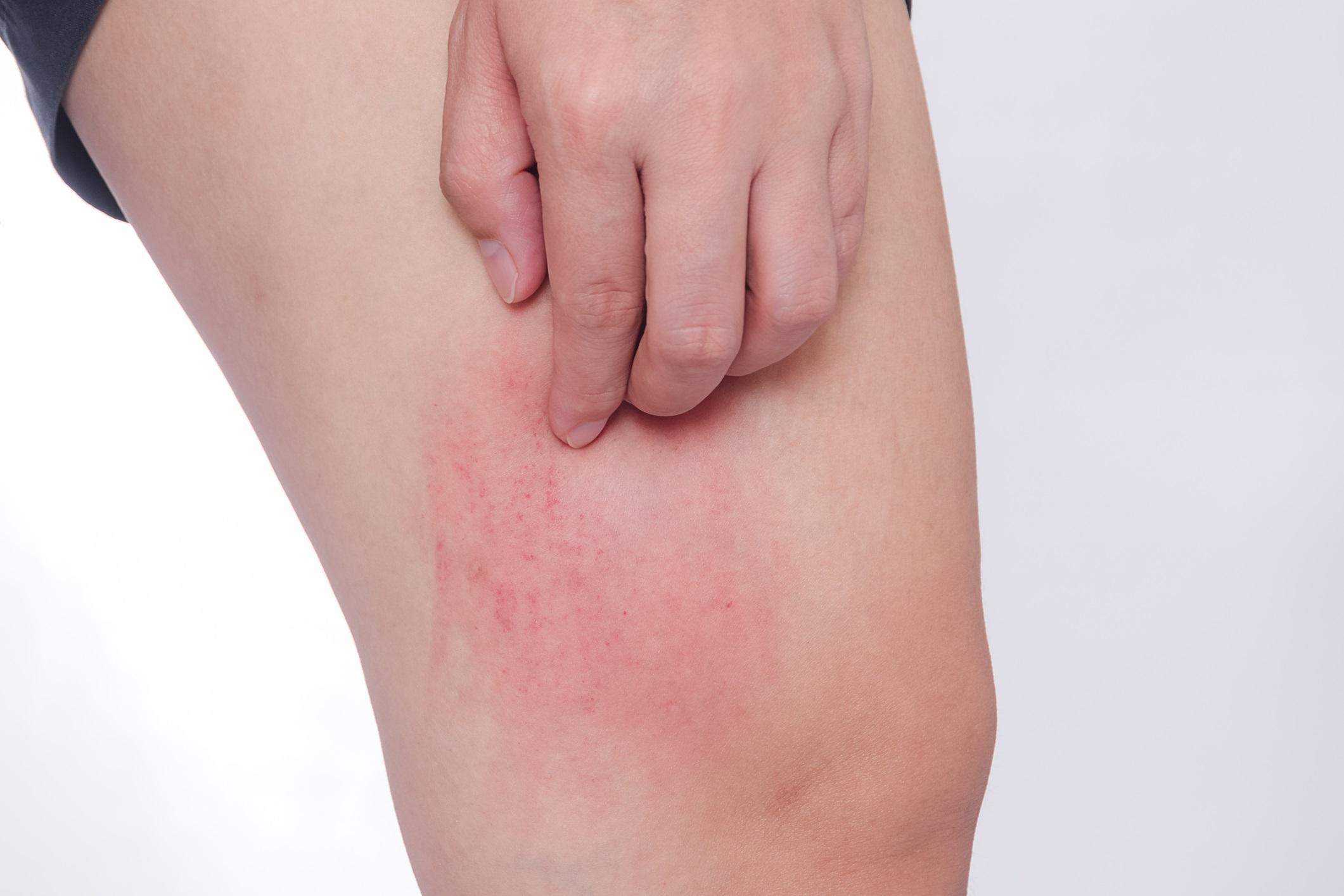 Rash Caused Allergic Reaction