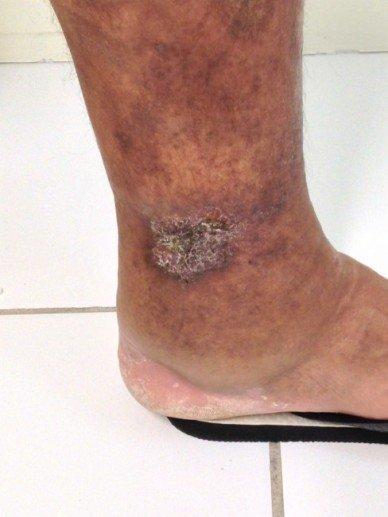 Toda ferida na perna é úlcera varicosa?