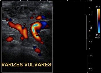 Ultrasom-Doppler mostrando varizes em região vulvar