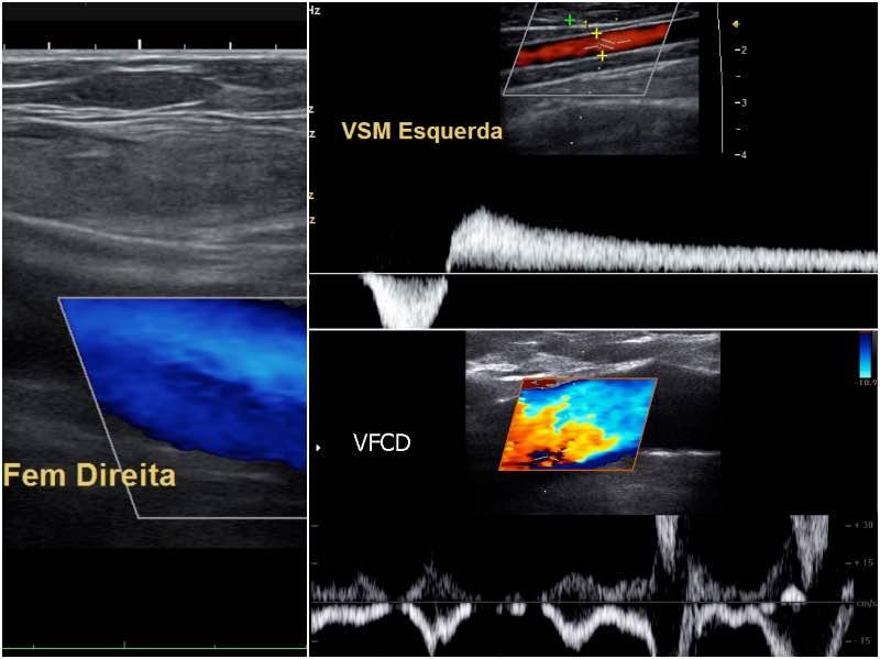 ecodoppler venoso - Fluxo - Clínica de cirurgia vascular