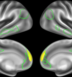 note that there are four different nodes that represent some part of the inferior parietal lobule shown in  [ 2133 x 1386 Pixel ]