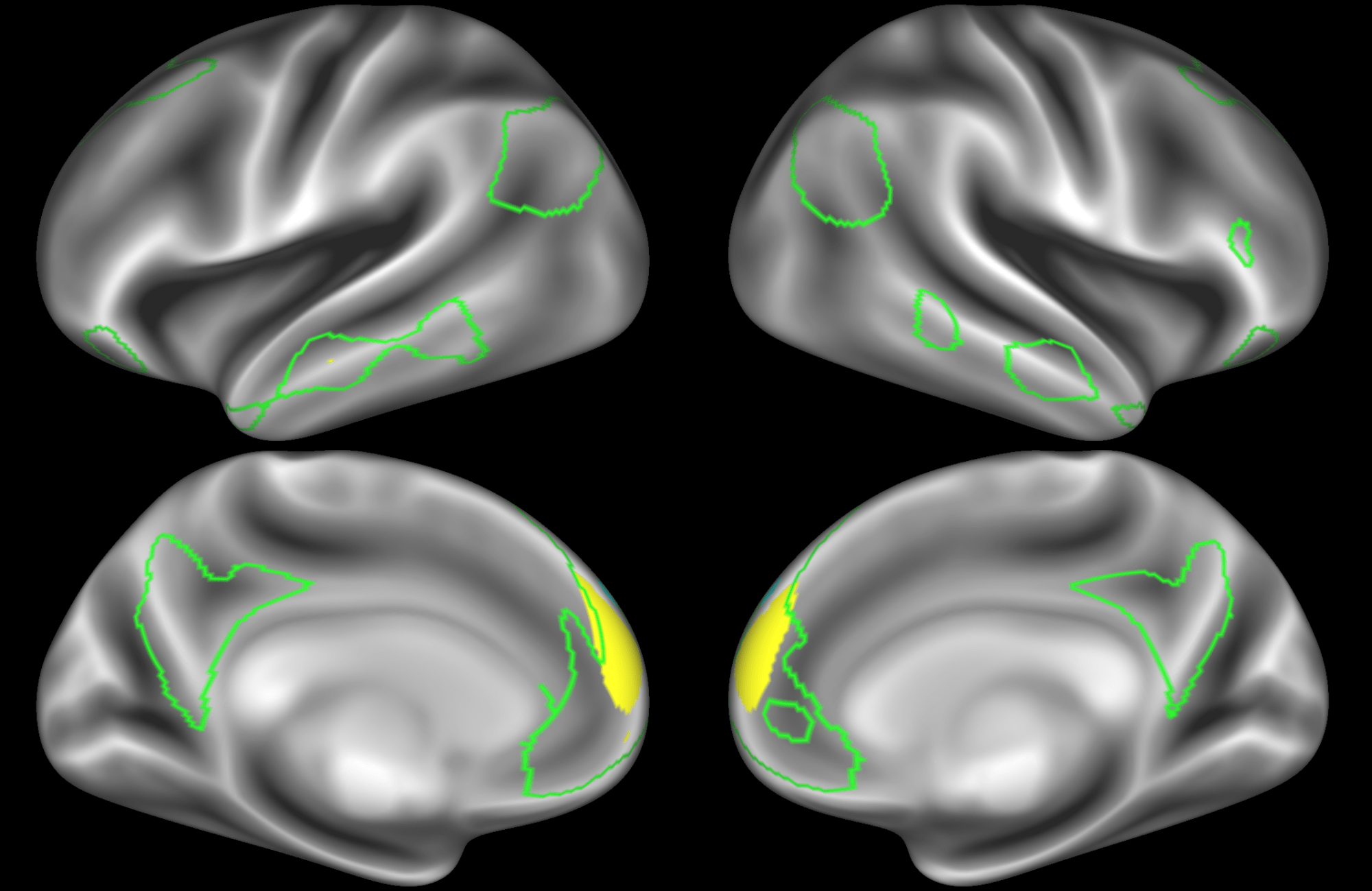 hight resolution of note that there are four different nodes that represent some part of the inferior parietal lobule shown in