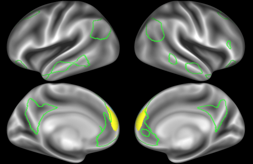 small resolution of note that there are four different nodes that represent some part of the inferior parietal lobule shown in