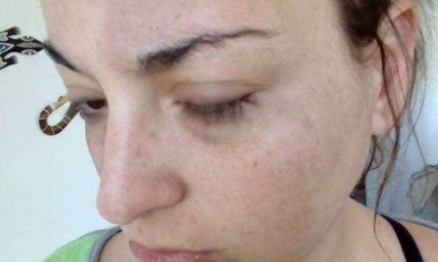 Cabrerense publicó imagenes de la golpiza que recibió por parte de su pareja