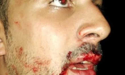 Habló Pablo Dell'Oso tras ser agredido por un cabrerense