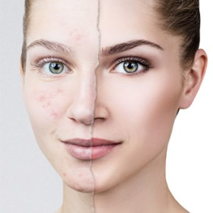 acne-treatment in hyderabad india