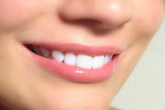 أفضل وصفة طبيعية لتبييض الأسنان