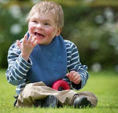 انغوس طفل لن يكبر بسبب تشوهات الكروموسومات