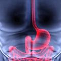 علاج القاولون الهضمي جابر القحطاني