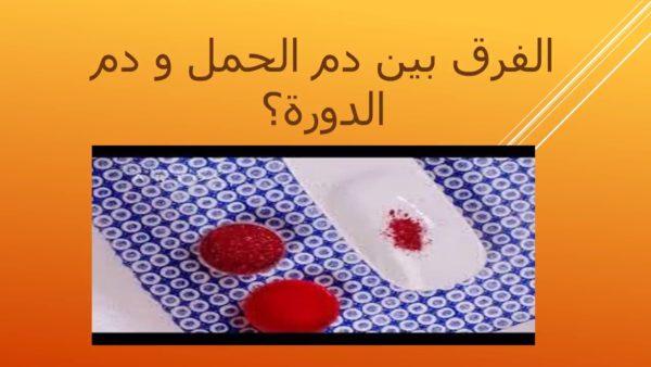 شكل دم الحمل بالصور