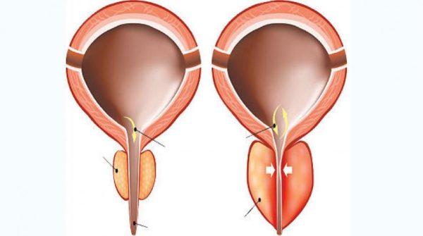 البيبون لعلاج التهابات البروستاتا ومشاكل البول