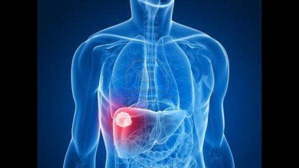 مرض الكبد الوبائي هل هو معدي