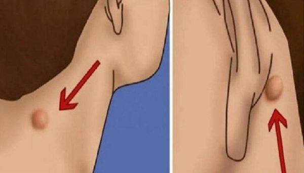 كيف اعرف الكيس الدهني من الورم
