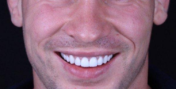 تجربتي مع الفينير المتحرك في تجميل اسناني