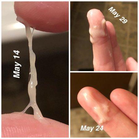 شكل افرازات الحمل قبل الدورة بالصور