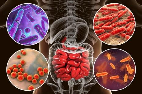 Disbiosi intestinale, microbiota