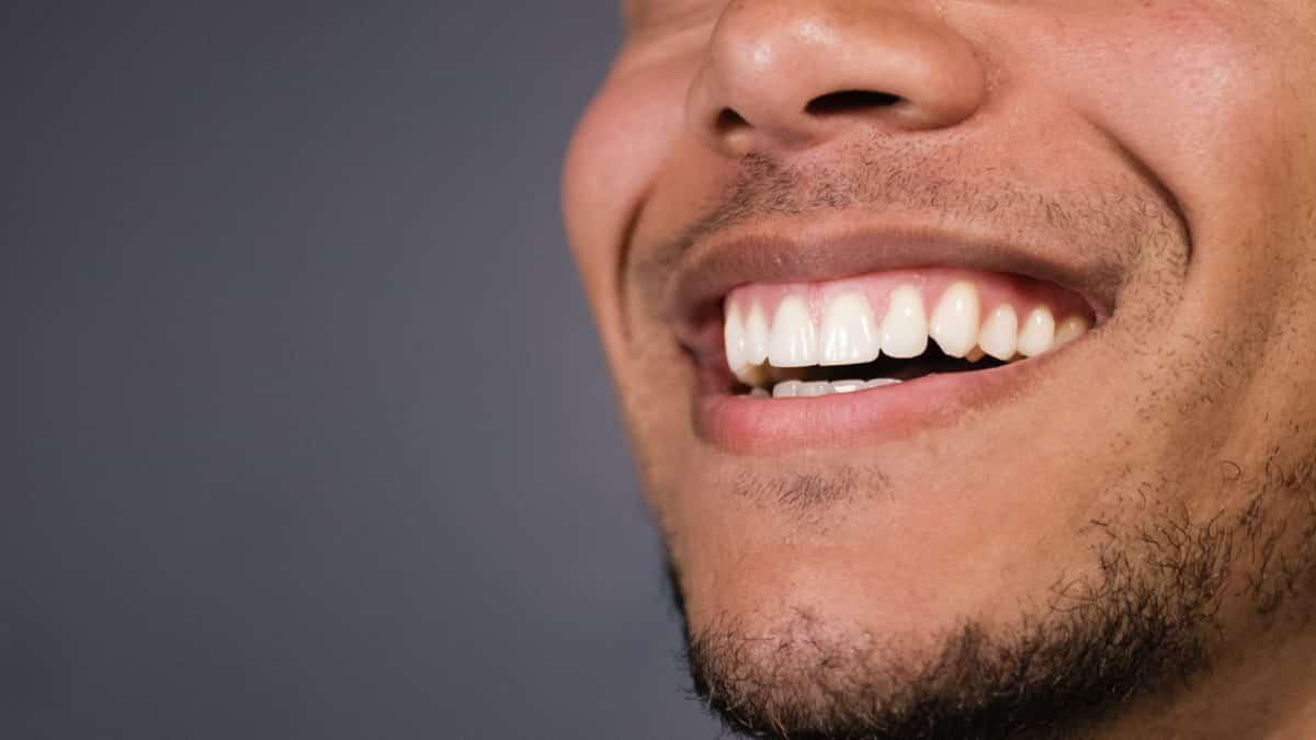 Dişlerde Siyah Lekelere Ne Sebep Olur