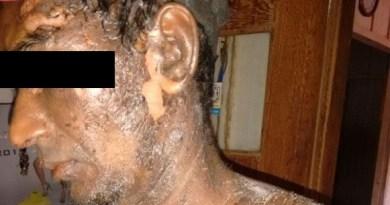 Após briga, mulher teria esquentado água para agredir marido (Foto: Rep./Blog do Junior Ribeiro)